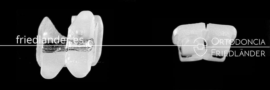 Brackets estéticos de cerámica - ¿cómo escoger un bracket de calidad? 4