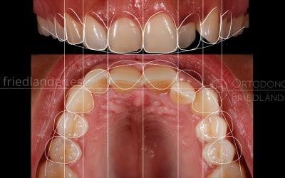 Estética dental, ortodoncia y diseño de sonrisa digital 1
