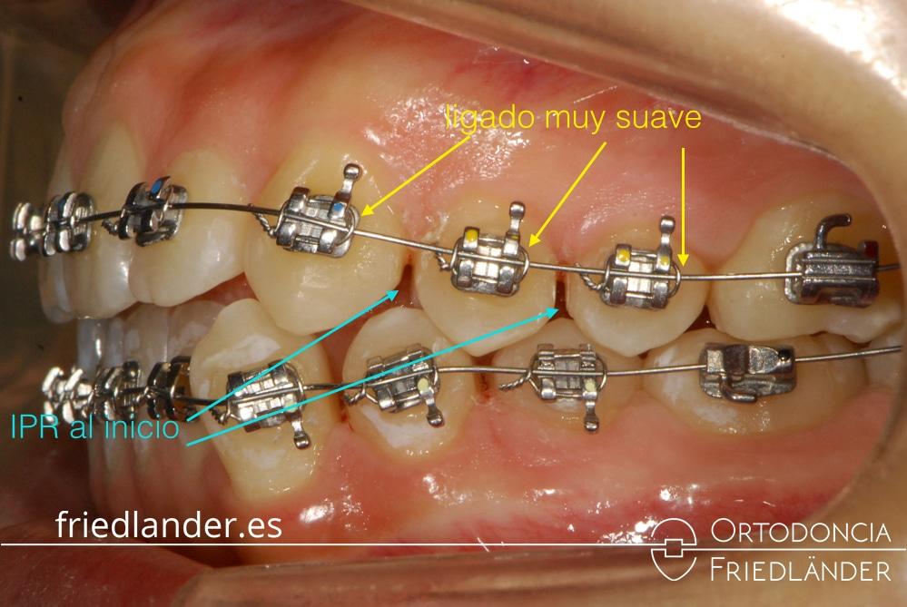 Tratamiento con ortodoncia fija y stripping (Apiñamiento y desviación línea media) - Caso 40 1