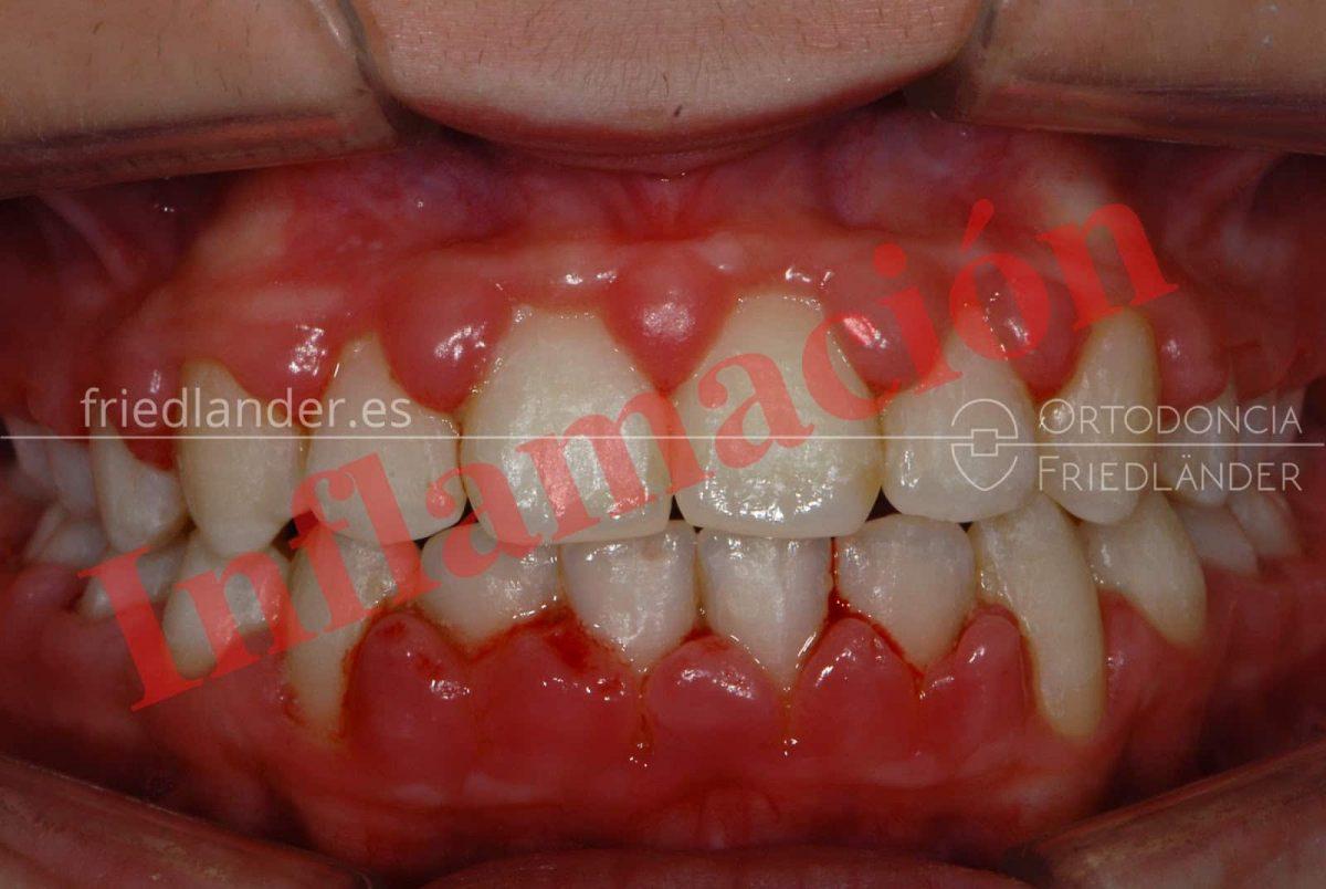 Inflamación de encías y tratamiento de ortodoncia 3