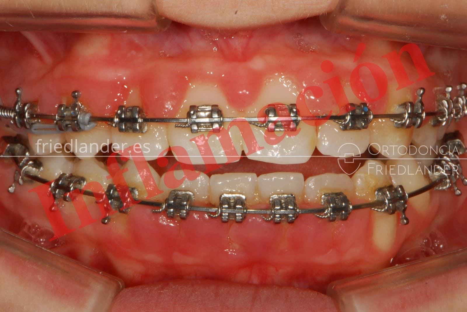 Inflamación de encías y tratamiento de ortodoncia 2