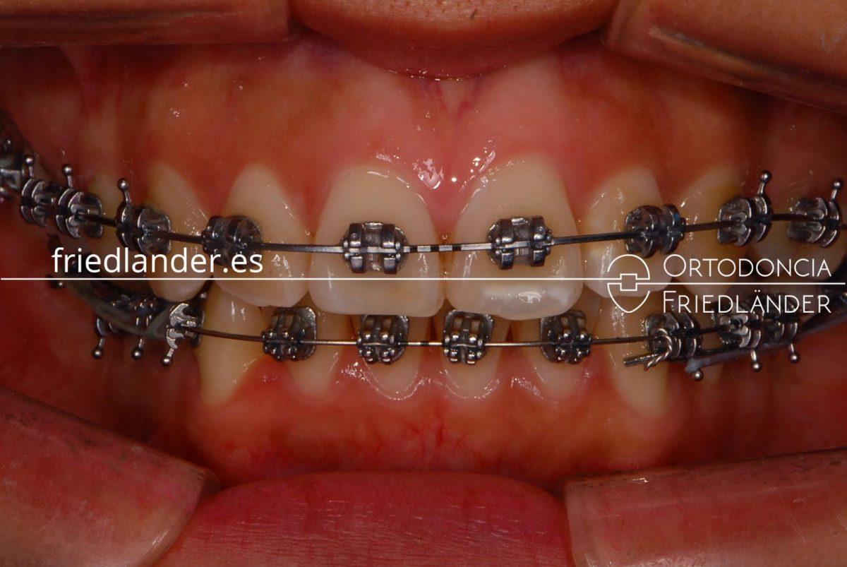 Inflamación de encías y tratamiento de ortodoncia 4