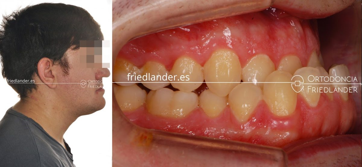 La Cirugía ortognática para tratar deformidades faciales 8