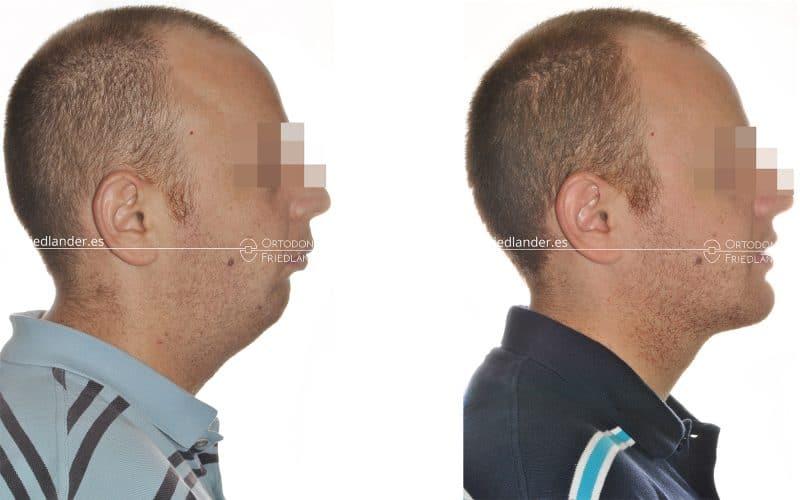 La Cirugía ortognática para tratar deformidades faciales 1