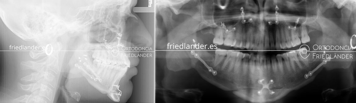 La Cirugía ortognática para tratar deformidades faciales 2