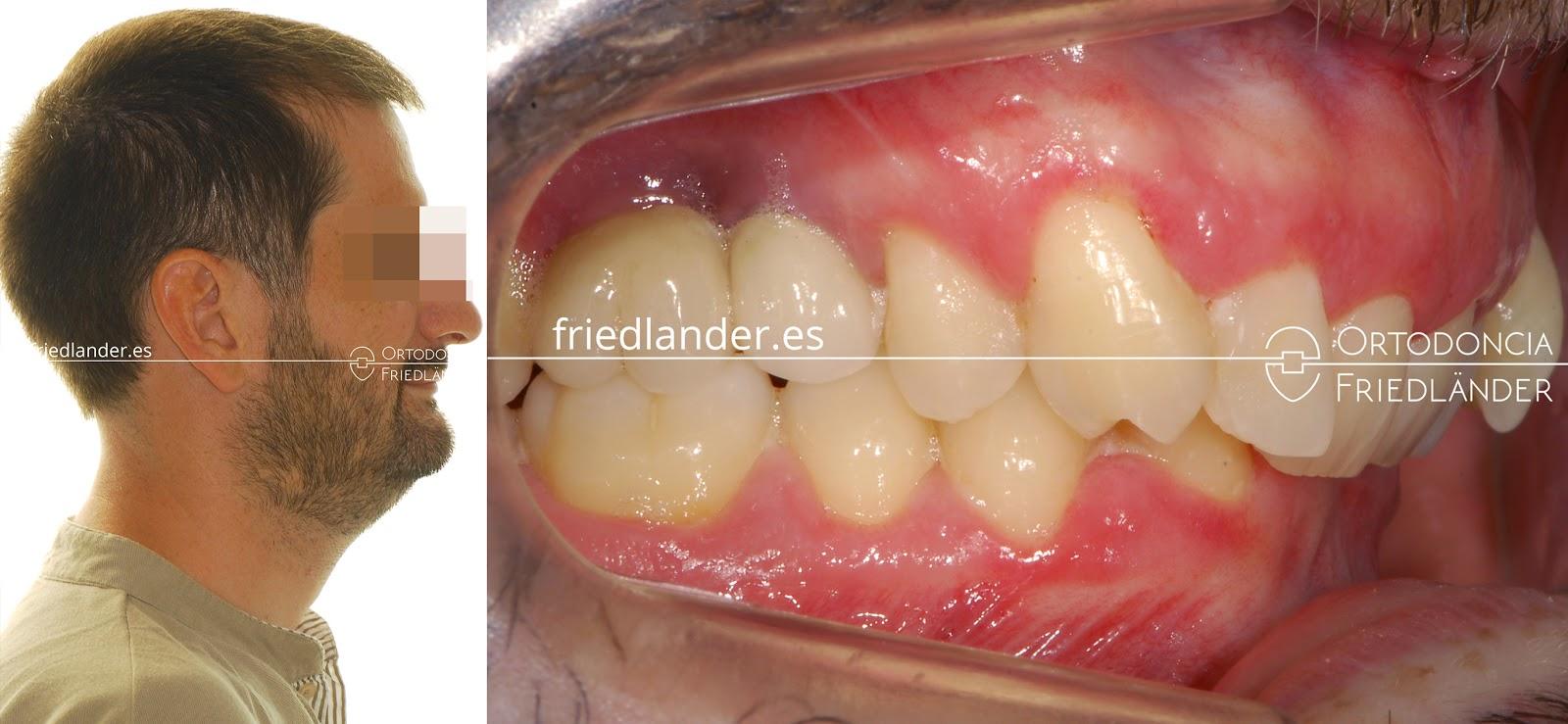 La Cirugía ortognática para tratar deformidades faciales 4
