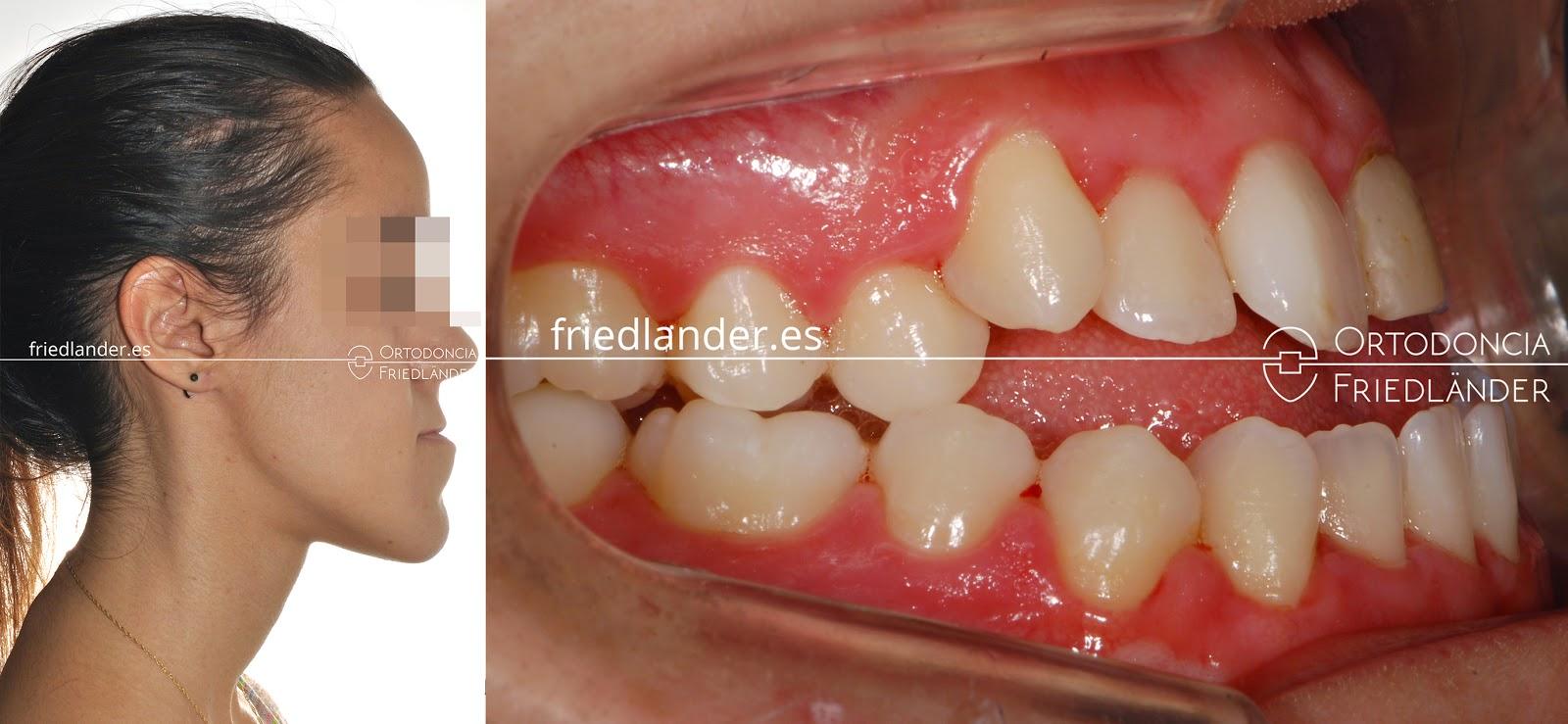 La Cirugía ortognática para tratar deformidades faciales 7