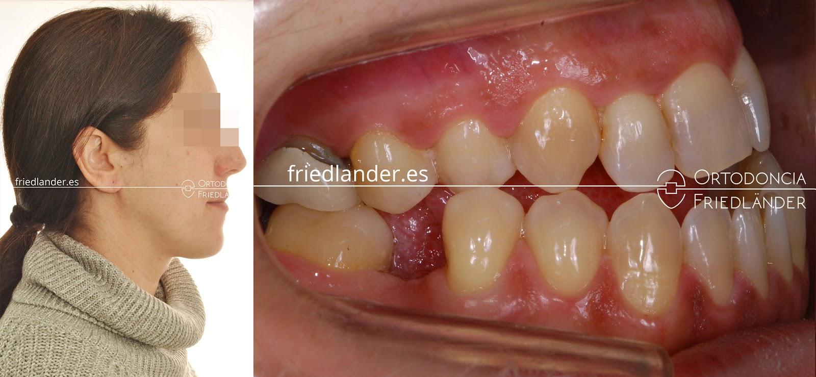 La Cirugía ortognática para tratar deformidades faciales 5