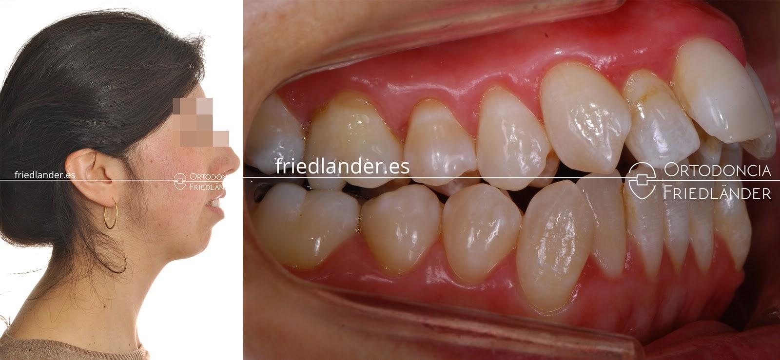 La Cirugía ortognática para tratar deformidades faciales 6
