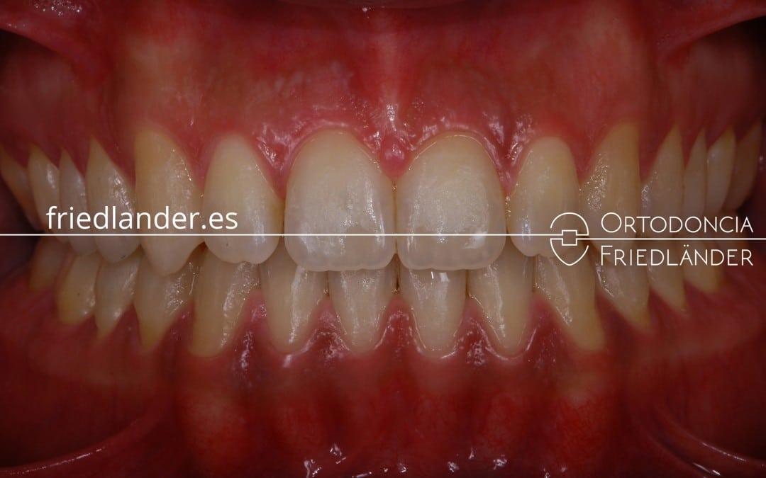 Tratamiento con ortodoncia fija y microtornillos (Mordida abierta) - Caso 42 1