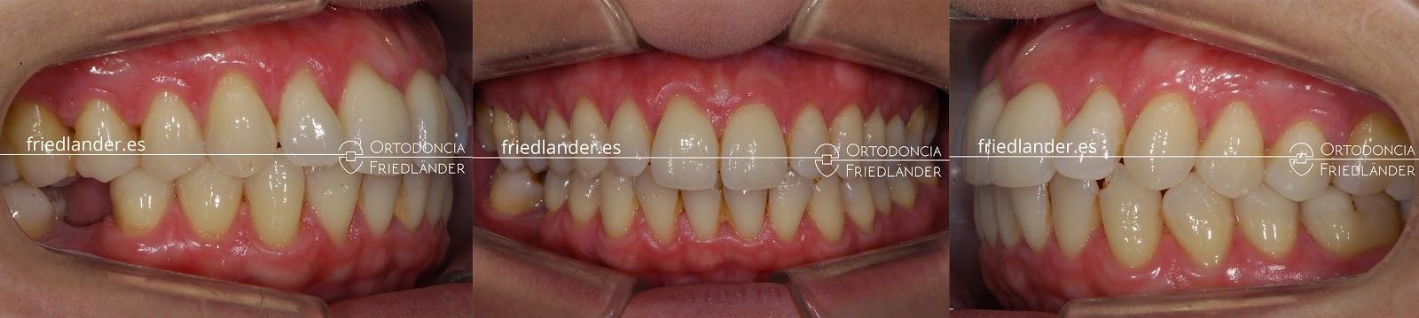 Me falta una muela - ¿se puede cerrar el espacio con ortodoncia? 5