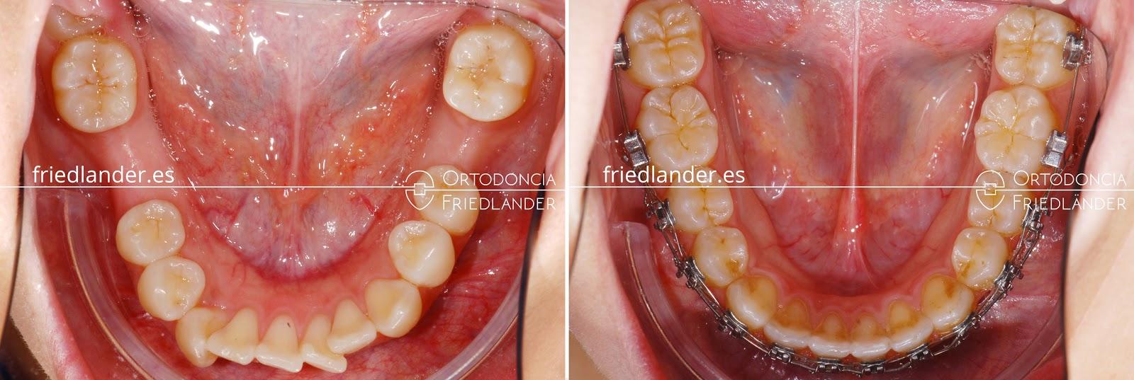 Me falta una muela - ¿se puede cerrar el espacio con ortodoncia? 4