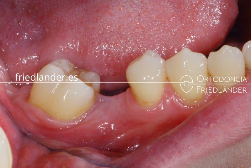 Me falta una muela - ¿se puede cerrar el espacio con ortodoncia? 1