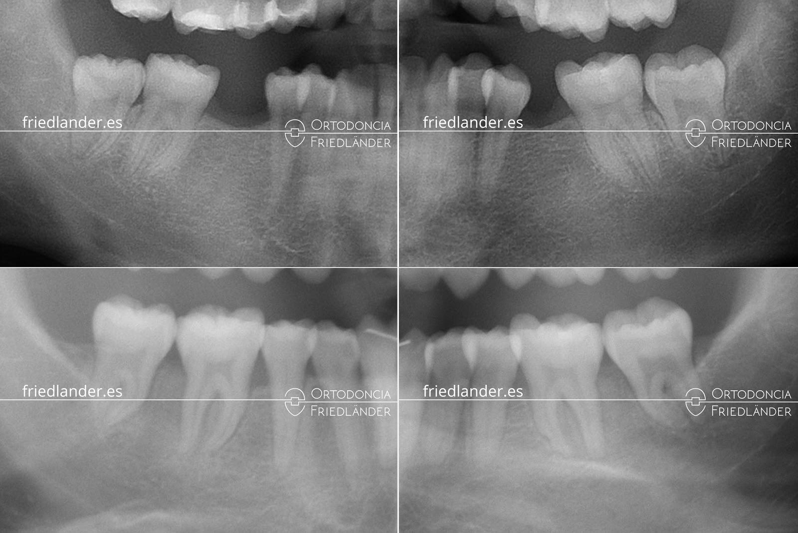 Me falta una muela - ¿se puede cerrar el espacio con ortodoncia? 3