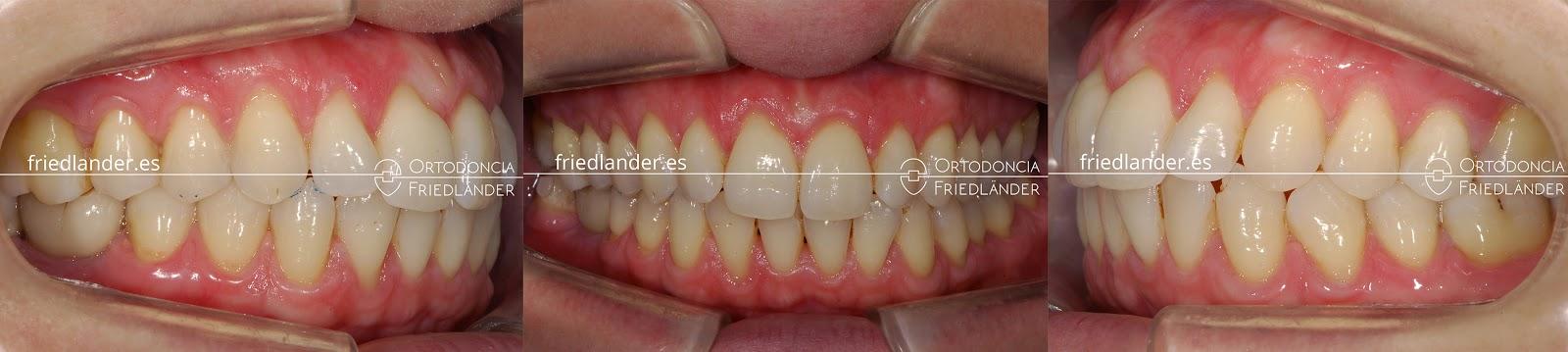 Me falta una muela - ¿se puede cerrar el espacio con ortodoncia? 8
