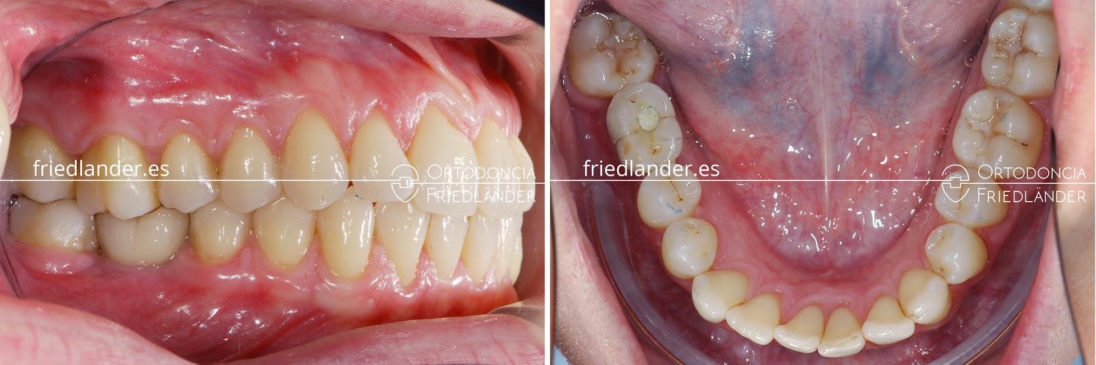 Me falta una muela - ¿se puede cerrar el espacio con ortodoncia? 7