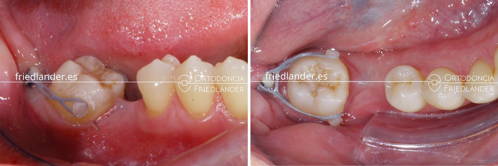 Me falta una muela - ¿se puede cerrar el espacio con ortodoncia? 6