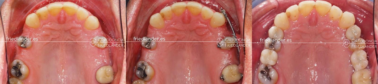 Me falta una muela - ¿se puede cerrar el espacio con ortodoncia? 9