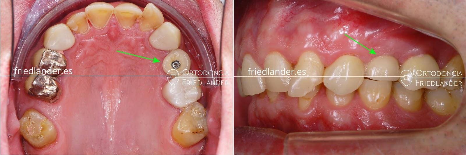 Me falta una muela - ¿se puede cerrar el espacio con ortodoncia? 2