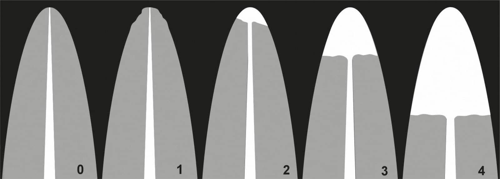Reabsorciones radiculares o acortamiento de las raíces en los tratamientos de ortodoncia 3