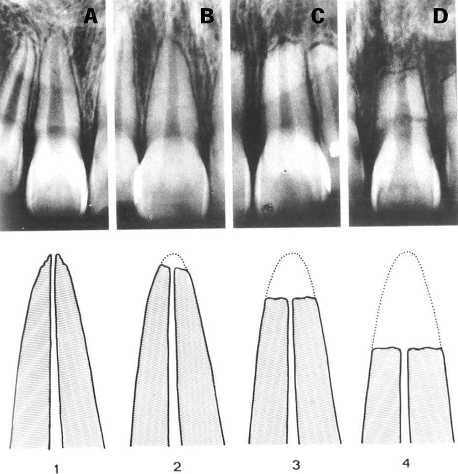 Reabsorciones radiculares o acortamiento de las raíces en los tratamientos de ortodoncia 4