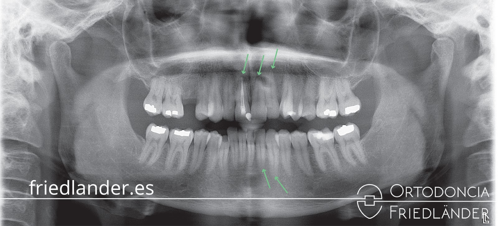 Reabsorciones radiculares o acortamiento de las raíces en los tratamientos de ortodoncia 5