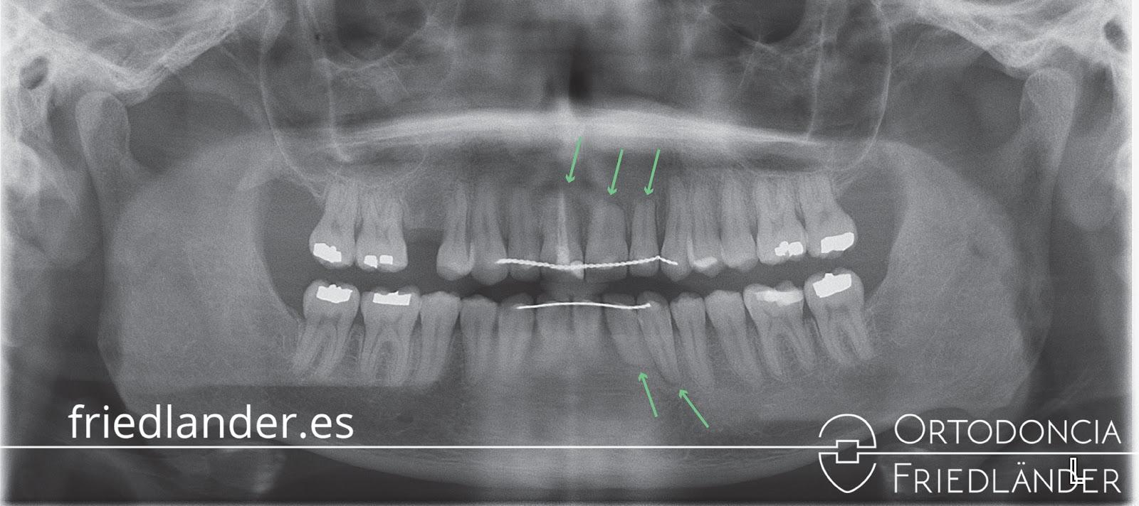 Reabsorciones radiculares o acortamiento de las raíces en los tratamientos de ortodoncia 6