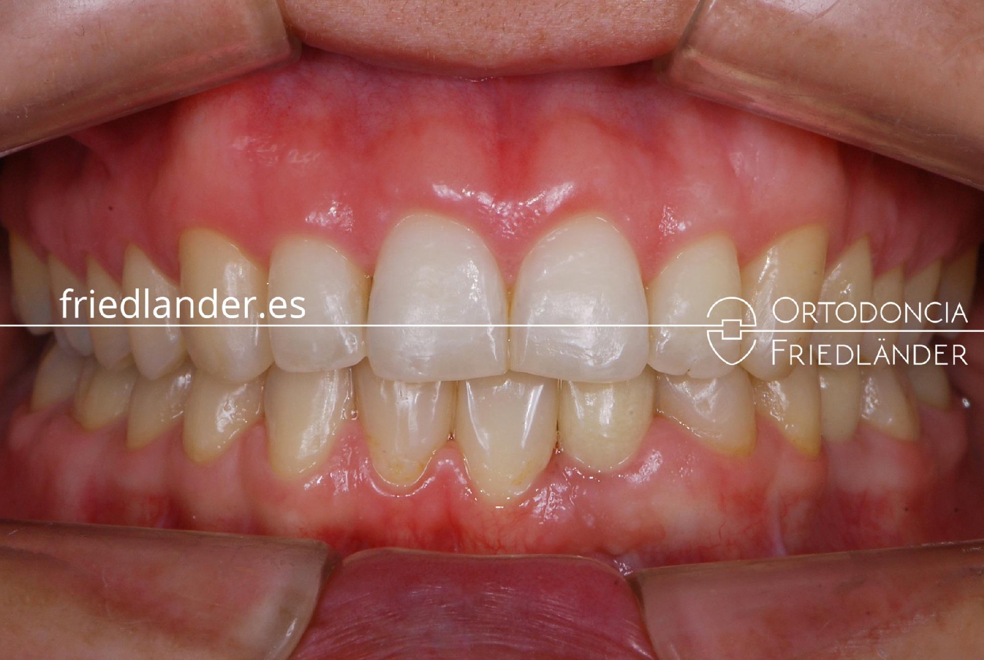 Tratamiento multidisciplinar de agenesias dentales con ortodoncia fija de autoligado, implantes y estética dental - Caso 44 1