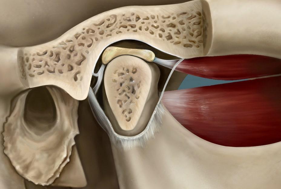 Los problemas de la articulación de la mandíbula - Dolor de la ATM 1