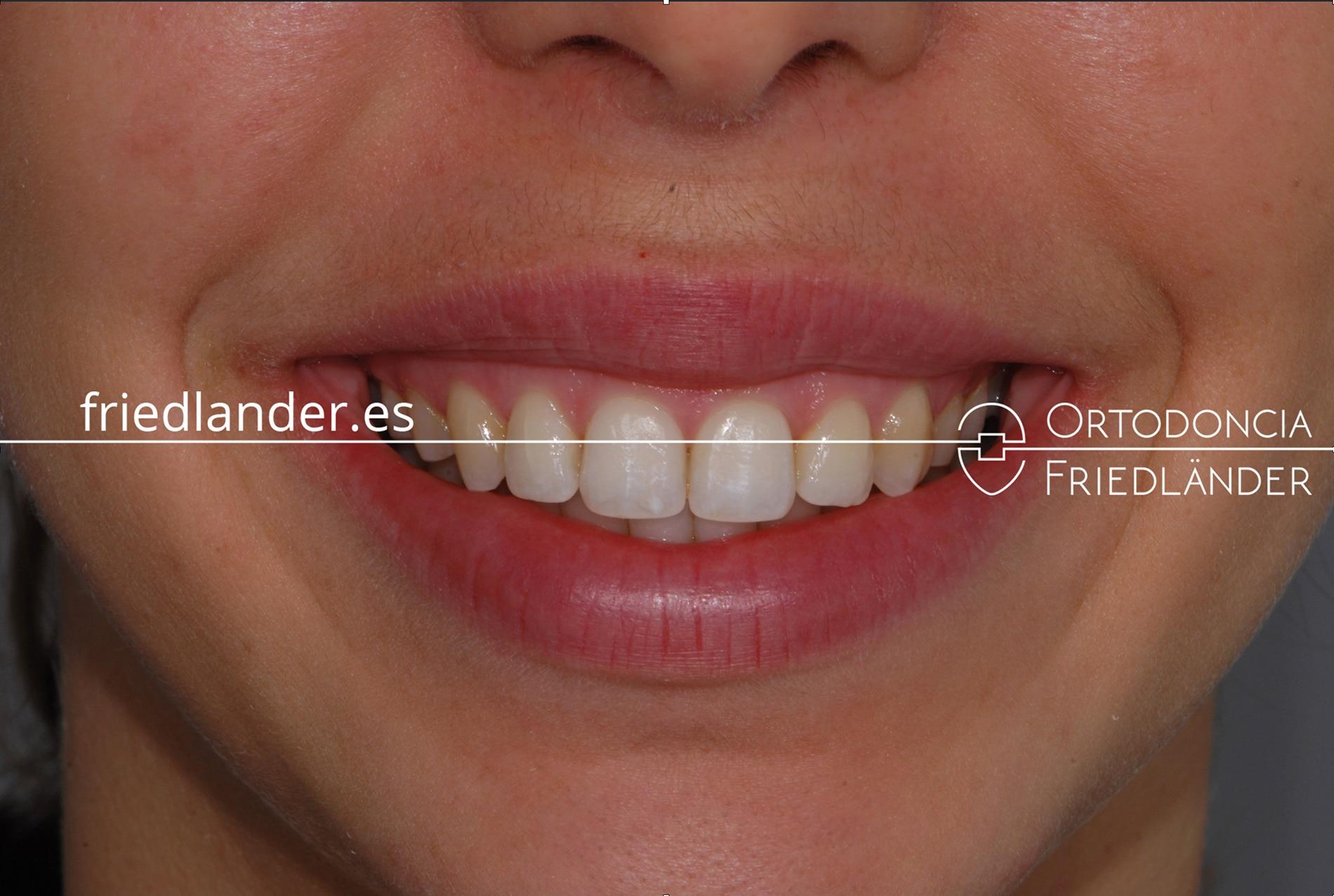 Tratamiento de mordida abierta y sonrisa gingival posterior con microtornillos y brackets estéticos - caso 47 1
