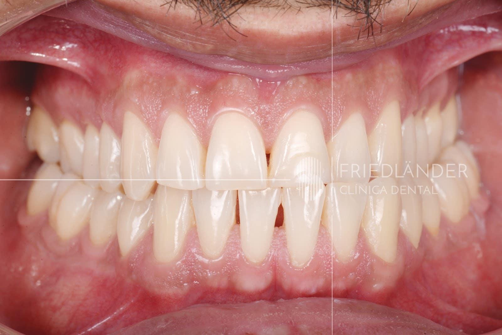 Paladar Ojival o paladar estrecho en adultos, causas y tratamientos. 3