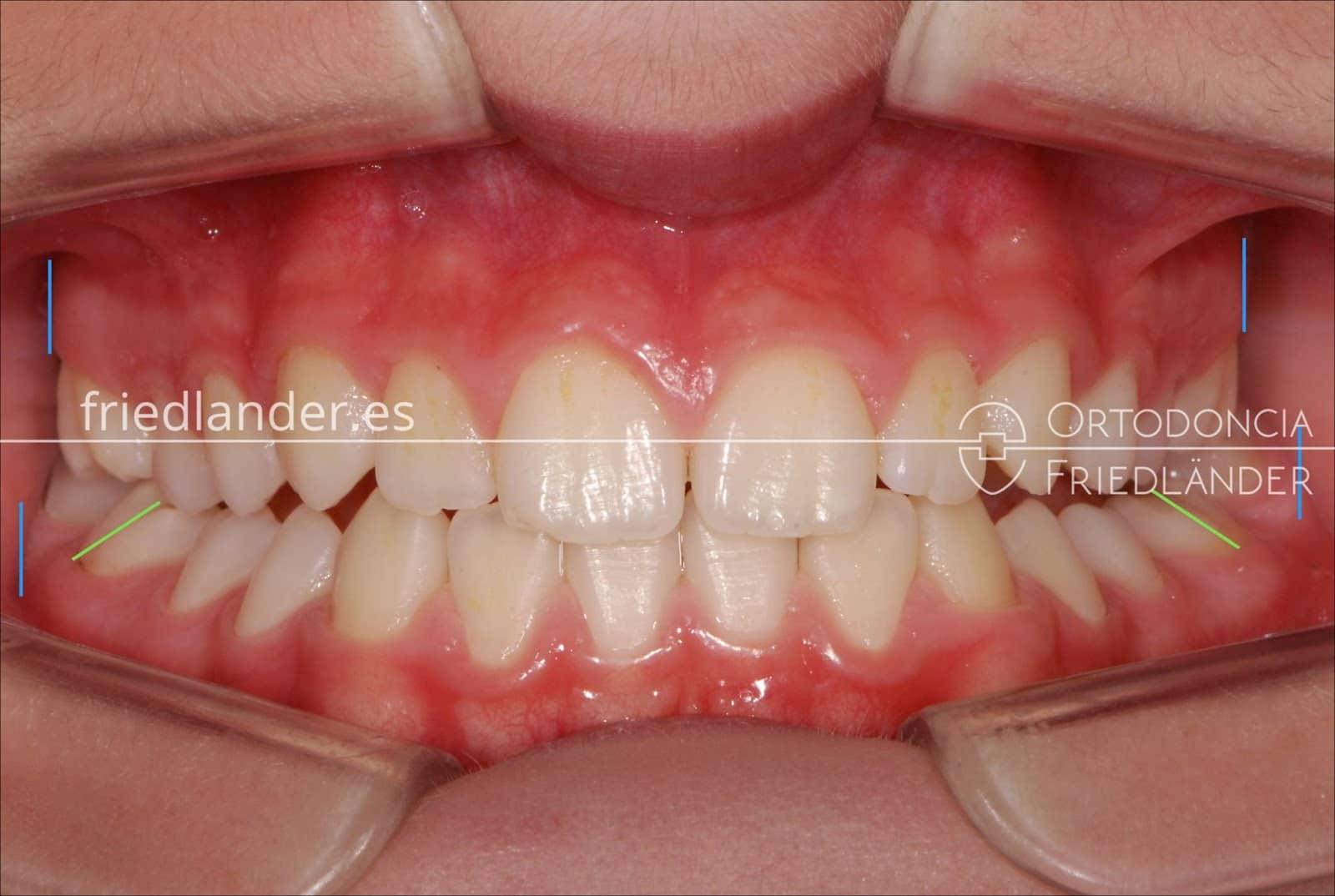 Paladar Ojival o paladar estrecho en adultos, causas y tratamientos. 5