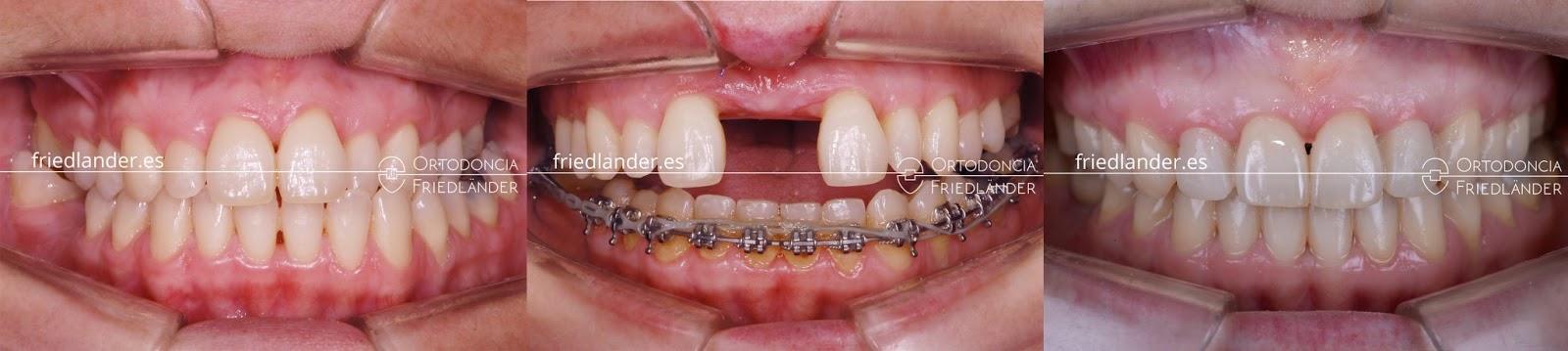 Paladar Ojival o paladar estrecho en adultos, causas y tratamientos. 8