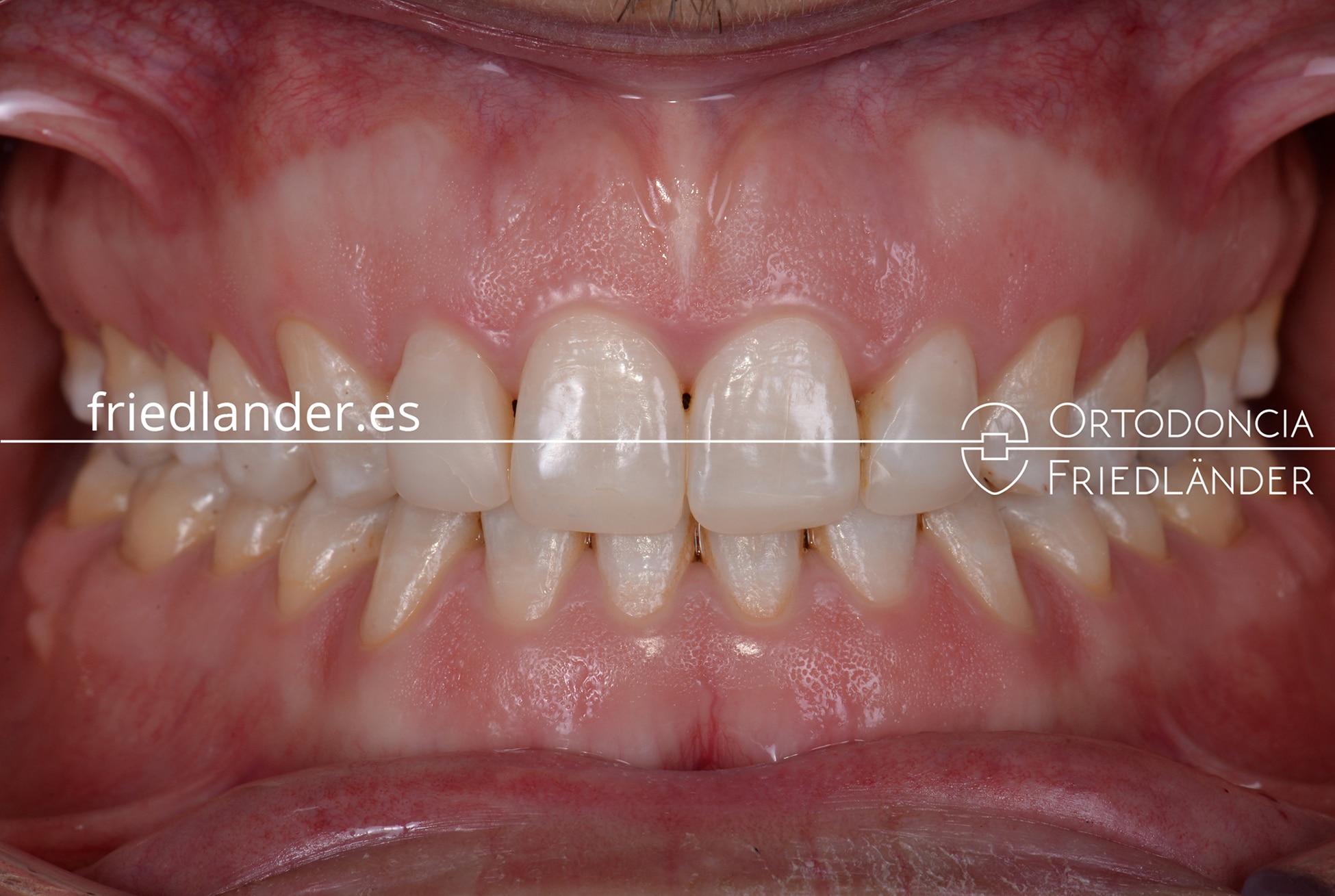 Tratamiento de mordida abierta severa con microtornillos y brackets de autoligado – caso 48 1