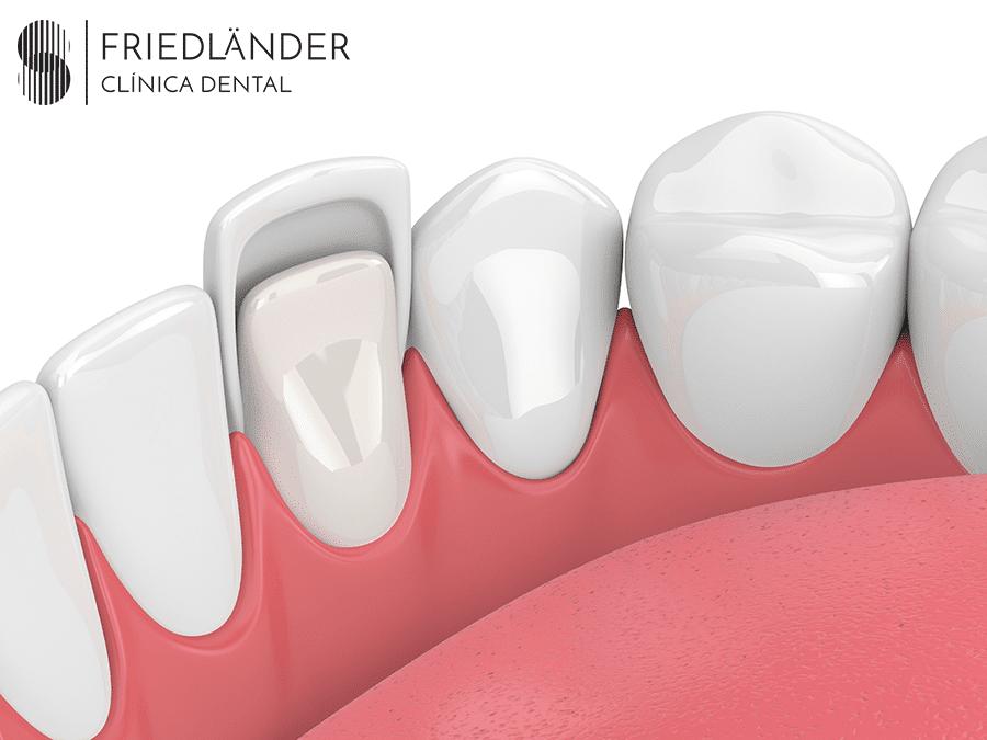Carillas dentales: Qué son, tipos, diferencias y precios. 1