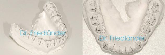 La colocación de los brackets: los dos métodos básicos 5