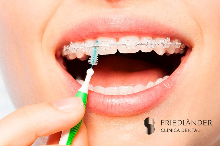 Cómo cepillarse los dientes con brackets 1