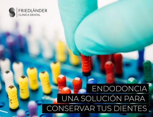 Endodoncia, una solución para conservar tus dientes.