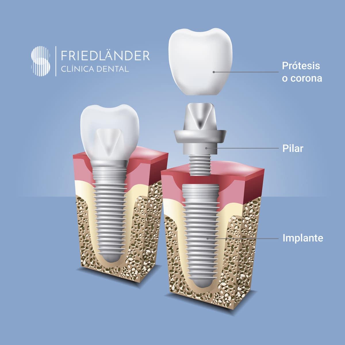 Resolvemos tus dudas sobre Implantes dentales 1