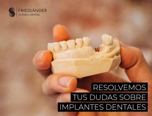 Resolvemos tus dudas sobre Implantes dentales