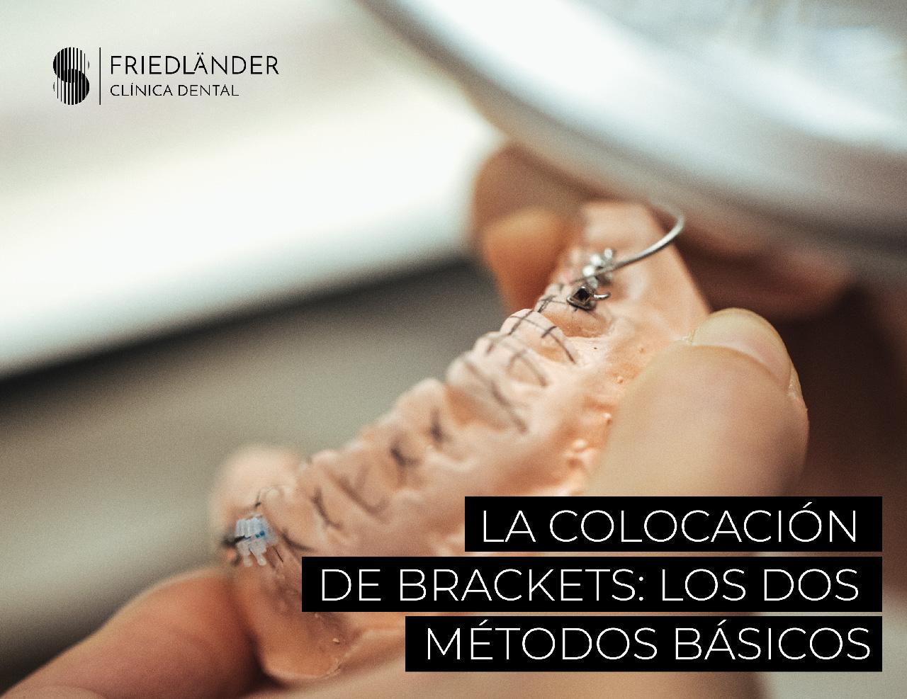 La colocación de los brackets: los dos métodos básicos 4