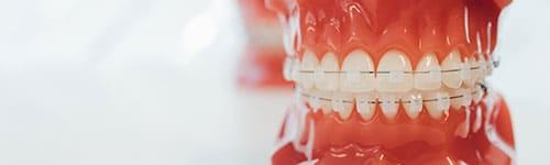 Ortodoncia con brackets 7
