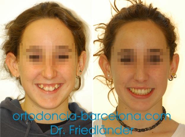 Sonrisa gingival: tratamientos para el diseño de la sonrisa 5