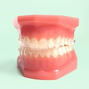 Tratamientos ortodoncia 2