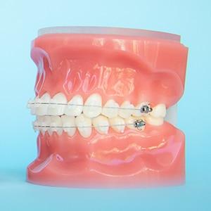 Tratamientos ortodoncia 1