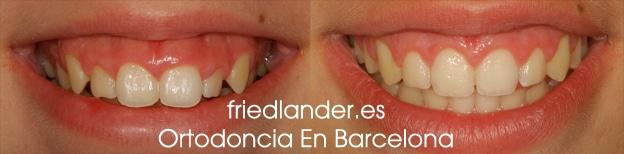 Sonrisa gingival: tratamientos para el diseño de la sonrisa 3
