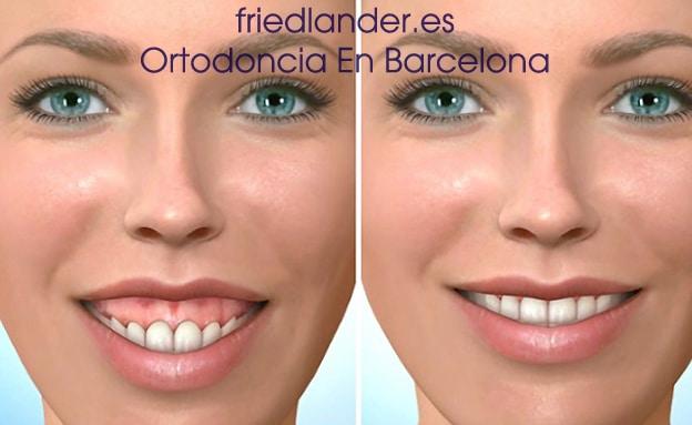 Sonrisa gingival: tratamientos para el diseño de la sonrisa 4