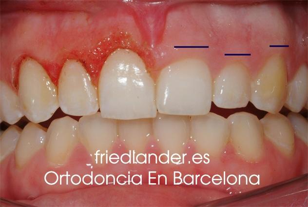 Sonrisa gingival: tratamientos para el diseño de la sonrisa 2