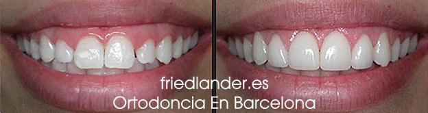 Sonrisa gingival: tratamientos para el diseño de la sonrisa 1