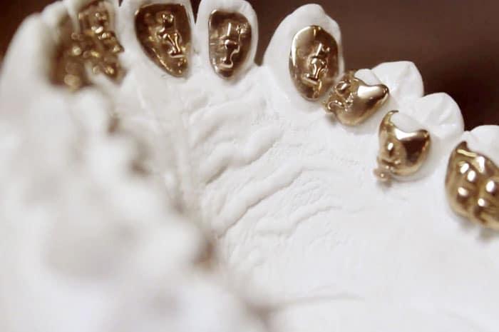 Ortodoncia lingual Incognito, la ortodoncia invisible 100% personalizada 6